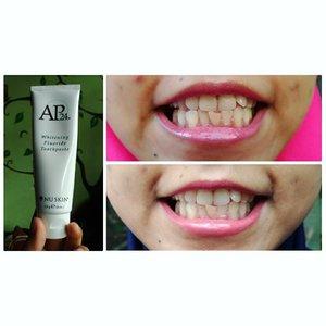 Mentemen, seneng gk sih kalau warna gigi itu putih? Gigi saya kuning soalnya, uhuhu.  Sebetulnya saya ngerasa warna gigi itu ya emang agak kuning, gk yang putih banget gitu. Dan ngerasa sama aja pakai pasta gigi apapun, jadi yaudah lah sikat gigi juga pakai pasta gigi biasa aja selama ini.  Tapi 3 minggu yang lalu, saya dikenalkan ke AP24 ini, pasta gigi keluaran nu skin. Dikasih liat foto gigi orang lain gitu yang nunjukin giginya lebih putih setelah pakai ini. Saya pikir yaudah lah ya, gk ada salahnya dicoba.  First of all, pasta gigi ini diklaim: ❌No Peroxide ❌No Bleach 😀Menghilangkan plak gigi 😀Mengembalikan warna alami gigi 👏Direkomendasikan Dokter Gigi 👼🏻Sangat baik & aman untuk anak2 dan Ibu hamil  Setelah seminggu pakai, udah lumayan keliatan sebenernya hasilnya, tapi gk yang keliatan jelas. Begitu 3 minggu pakai, ya kayak gini hasilnya. Beda kan? Kan? Kan? Hehehe.  Ini bukan karena editan lho ya, tapi beneran begitu hasilnya.. Makanya kayanya saya mau lanjutin pakai nih, hahaha. Ada mau ikutan pakai gaak? Yuk yuk dicoba, hehe  Kebetulan saya mau lanjut beli euy, kalau ada yang mau juga, komen yaa, nanti temenku @zhafirah_beauty_spa yang akan ngasih info detailnya 😉😉😉 --- #nuskin #nuskintoothpaste #toothpaste #whitening #whiteningtoothpaste #ap24nuskin #gigi #gigiputih #clozetteid #pastagigi #paatagiginuskin