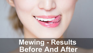 Mewing - Results Before And After - Nourish Perk