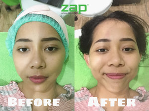 Heyo Beauties! 💖So, several days ago, I've tried New ZAP Photo Facial Treatment in @zaplotte •You can see the result on the picture! I also make a #VLOGGY 7: Facial Tanpa Sakit di ZAP Clinic on my YouTube channel: Christy Raina (link on bio) ✨•Overall, I love the result! My skin becomes brighter and smoother—and it's painless. Wanna know more about the treatment? Go check my video on YouTube yaaa! 🤗💛•#cantikjamannow #clozetteid #zaptestimonial #discoveryourconfidence