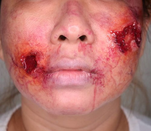 Akibat makan ga bersih dan cemong.Belakangan gw lg rajin latihan bikin bikin kaya ginian. Tdnya mau jemput les anak gw dengan muka gini, tp dilarang sm suami gw 😆.------.Infected Wound Makeup.Done with encapsulated silicone #platsilgel00 (also the fakeblood using platsilgel - im using eyeshadow instead of silicone pigment) and SFX Palette #skinillustrator @skinillustratorofficial #ppipremiereproducts @ppipremiereproducts to coloring the wound, bruise and veins..#woundmakeup #specialfxmakeup #sfxmakeup #sfxmuaindonesia #prostheticmakeup #thebloodybay #horrorhags #sfxmakeuptutorial #kbbvmember #ibv_sfx #clozetteid #indobeautygram