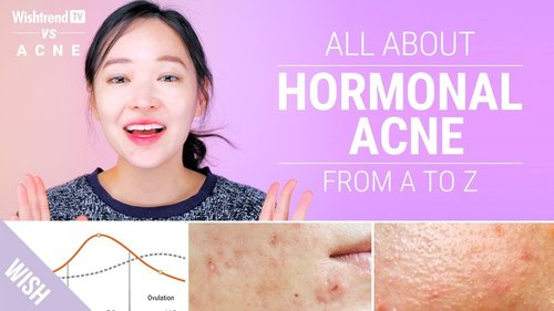 How to Cure Hormonal Acne : Lifestyle & Skincare Tips! | Wishtrend TV VS ACNE - YouTube