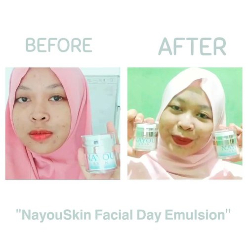 "Uwu gaes~ 💃I was surprised when I heard tone up cream & Day Cream contained into one product, will the results be maximal?Well~ indeed a fear this product will give a gray skin to me 😳So make me interest to review this local products, again by @nayouskin who release in 27 January 2020.Taraaaa~ 🎉""𝗡𝗮𝘆𝗼𝘂𝗦𝗸𝗶𝗻 𝗙𝗮𝗰𝗶𝗮𝗹 𝗗𝗮𝘆 𝗘𝗺𝘂𝗹𝘀𝗶𝗼𝗻""My opinion:🌼The packaging doesn't need to be discussed anymore, it's clearly safe & Sterile🌼Like night emultion, this product contains Galactomyces aka Pitera that have many advantage (good for healty & beauty skin)🌼Sun Protector🌼Hydrate & moisturize my face🌼Contain Tone up cream & light fragrance, feel like avocado (?)🌼My black spots obscured then the face becomes brighter uwu!!🌼BPOM NA18190125288💸 Price only 180k!! Well I wanna say uwuwuwuwuwuw~ 😍❤️𝗟𝗮𝗸𝘀𝗺𝗶𝗽𝗮𝗼𝗽𝗮𝗼'𝘀 𝗮𝗰𝗰𝗲𝗽𝘁𝗲𝗱 ✨.#myglowmyicon #nayouskin #ClozetteID #bhsxnayouskin #love #instagood #cute #photooftheday #diamdirumah #photography"