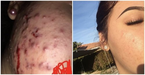 This 17-Year-Old Used Green Tea and Honey to Cure Her Cystic Acne