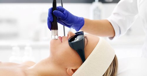 Everything you need to know about laser treatment for acne scars