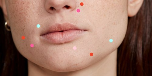 Heads Up: These 15 Weird Things Are Probs Causing Your Acne