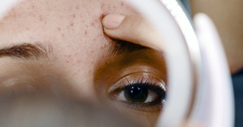 """<div class=""""photoCaption"""">The definitive guide to cystic acne and the dermatologist-approved guide to treating it</div>"""