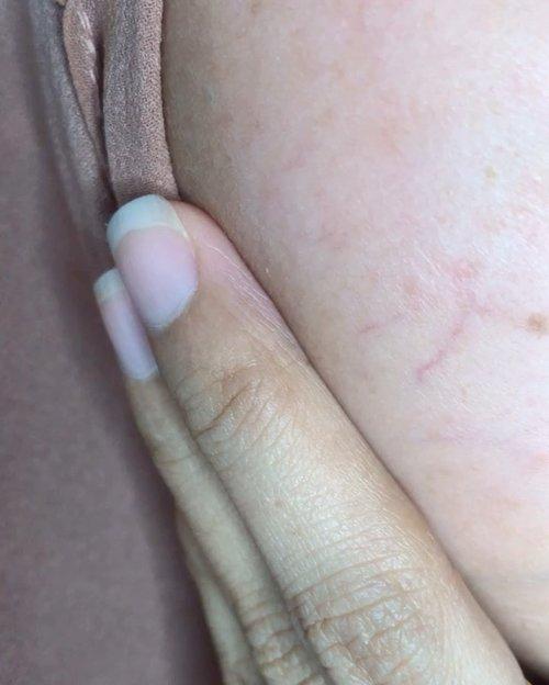 "Dark spot, & kulit tipis kalo di zoom sampai gini bentukannya agak ngeri sih liat kulit sendiri tapi ini beneran kulit sendiri ternyata 🤭🤭..... tapi sekarang uda mendingan kulitnya 💕💕..kulit gak berpori dan alus, tapi masalahnya juga banyak mudah kering , dark spot, sel sel kulit mati  bertebaran kalo gak rajin expoliating yah gini akibatnya..... padahal yah aku cuman mengabaikan expoliating sekitar dua tahunan lebih gitu, tapi efeknya begini fikirnya tu kalo uda pakek yang mengandung AHA/BHA / niacinamid bakal gak akan ada dark spot lagi dan salahku fokusnya nyari produk Hydrating selama in tapi beneran lupa padahal wajib banget tuh expoliating kulit , wajib jangan di abaikan yah teman"" dan satu lagi Sunscreen wajib !! Sadar sunscreen baru juga pass suka makeupan coba tau dari dulu uda pekek bukan malah sadar pengen putih 🙃..kalo masalah urat pipi ini, uda dari kecil sih makin tua makin transparan apalagi sekarang kurus, melihat tangan dan kakiku memang uratan juga kayak nenek"" 🙄. .Insecure sama diri sendiri ??? Perna !!Sejak kecil malah suka ditegur , kenapa tangan kakinya begitu, untungnya masa kecil dan remaja badanku gendut kayak bola jdi gak sengeri sekarang , itupun masih aj ada yang suka tegur. Jadi dulu itu suka sekali pakek sepatu jarang pakek sandal karna rasa insecure itu. Sekarang mah enjoy foll, uda perna lewatin masa"" itu, toh masih banyak yang menarik dari diri ini selain hanya melihat dari tangan dan kaki 🤪 . Ada yang sama gak sini kita toss dulu ??.#bareface @beautybloggerindonesia @cchannel_id @@cerita.cantik , @buat.cantik @bunnyneedsmakeup @tutorialmakeupkece @indobeautygram @wakeupandmakeup @tips__kecantikan @makeuptutorialindo#likeforlikes #eyeshadowtutorial #westernmakeup#instadaily #ootd #instamakeup#makeup  #cosmetic #cosmetics #likes  #foundation #beauty #beautyantusiast #cccushion #beautybloggerindonesia #makassarinfo #contentcreator #Uswahmakeuptutorial  #makeuppemula #makeupaddict #makepgirlz #beautycontentcreator#likes #likeforfollow #"