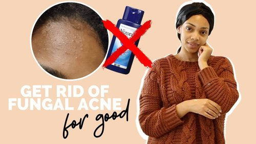 HOW TO TREAT FUNGAL ACNE | THE BEST WAY! - YouTube