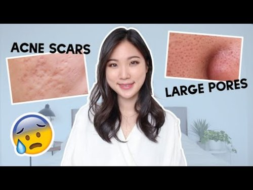 😨 How to prevent acne scars, How to reduce large pores? Skincare Q&A - YouTube