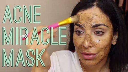 My Favorite Acne Miracle Mask! \ خلطة طبيعيّة لمعالجة حبّ الشباب - YouTube
