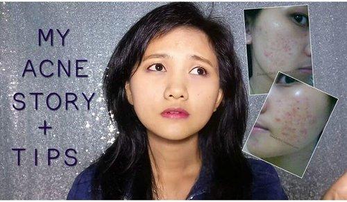 Mau tau gimana perjuanganku melawan jerawat? Mampir ke channel ku hari ini ya, karna aku juga akan bagi tips agar jerawat gak balik lagi..😊 Link active ada dibio ya.. https://youtu.be/nbziUzdRxZA #clozetteid #acnestory #acne #myacnestory