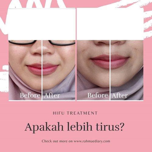 Selamat pagi, ada yang tertarik untuk mencoba HIFU alias High Intensity Focused Ultrasound? Boleh baca pengalamanku kemarin di blog rahmaediary.com..#blogger #bloggerindonesia #clozetteid #skincare #hifu #hifutreatment #beforeandafter