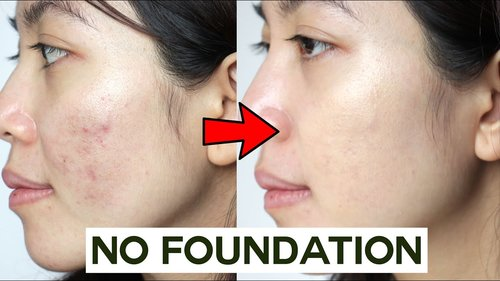 How to Cover Acne & Blemishes WITHOUT Foundation  • easy & non cakey - YouTube