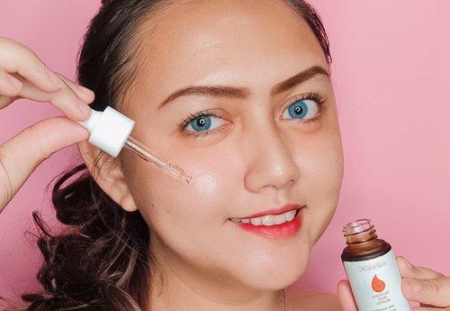 [Review] Elsheskin Radiant Skin Serum, Solusi Kulit Kusam