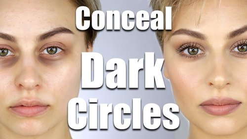 """<div class=""""photoCaption"""">How To Conceal Dark Circles Under Eyes 