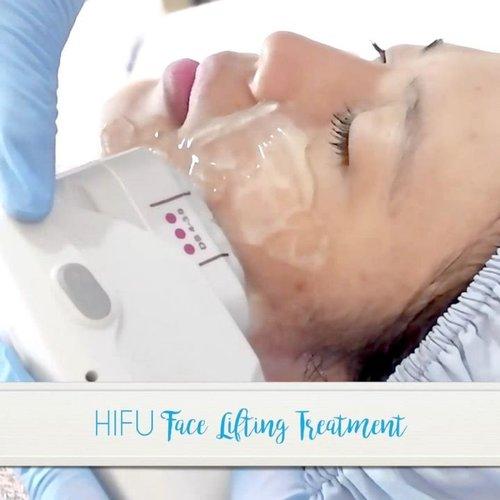 Pengalaman pertama kali nyobain HIFU treatment di @karadentaclinic Bandung. . . . #HIFU #HIFUTreatment #KaradentaClinic #KaradentaTerstimoni #KlinikKecantikanBandung #ClozetteID #beauty #blogger #beautyblogger #bandung #igers #treatment #like4like #lifestyle #healthy #review #photooftheday #photography #videography #potd #picoftheday #girl #happiness