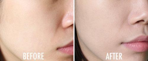 Ini dia hasil penggunaan Atomy BB Cream, wajah jadi terlihat matte, coveragenya pun lumayan oke.. Cocok banget untuk yang punya wajah berminyak atau berjerawat pokoknya! :) Full review on www.beautyappetite.com