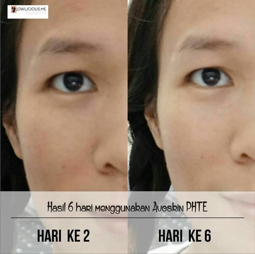 💙💙💙 Ini hasil pemakaian  @avoskinbeauty PHTE selama kurang lebih 6 hari, in loveee . Kamu bisa cari tau lebih lanjut di www.Glowlicious.Me guys😊 . #GlowliciousMe @GlowliciousMe . . . #dailyskincare  #clozetteid #bblog #skincareaddict #fdbeauty #bloggerreview #tulips #essence#clozette #skincarecommunity #SkincareRoutine #IndonesianBeautyBlogger #LivePerfectly #PesonaCantikAlami #AvoskinAtJXB #Avoskin #JakartaXBeauty2018